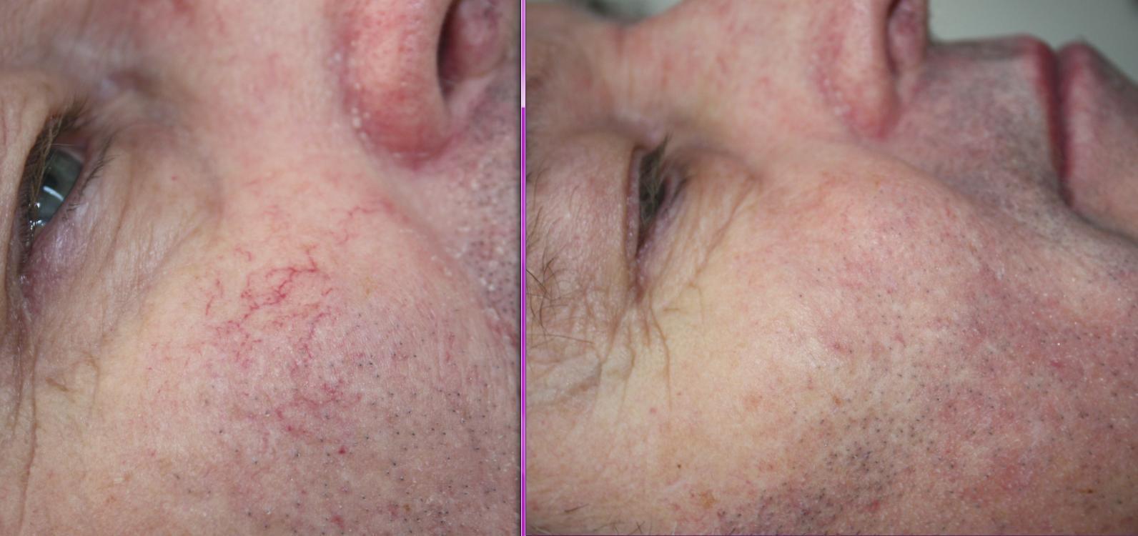 Facial varicose veins causes