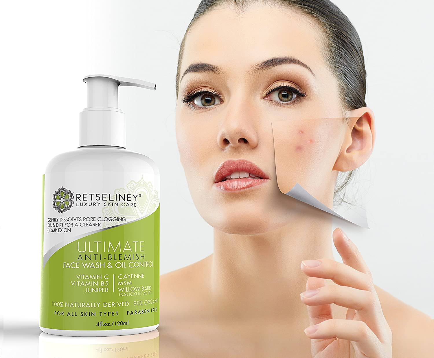Sentinel reccomend Best natural acne treatments facial cleanser acne