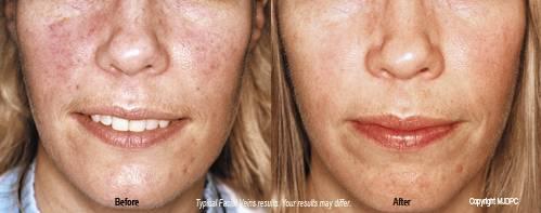 Finch reccomend Facial varicose veins causes