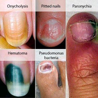 best of Menthol treatment nail Nail fungus penetration