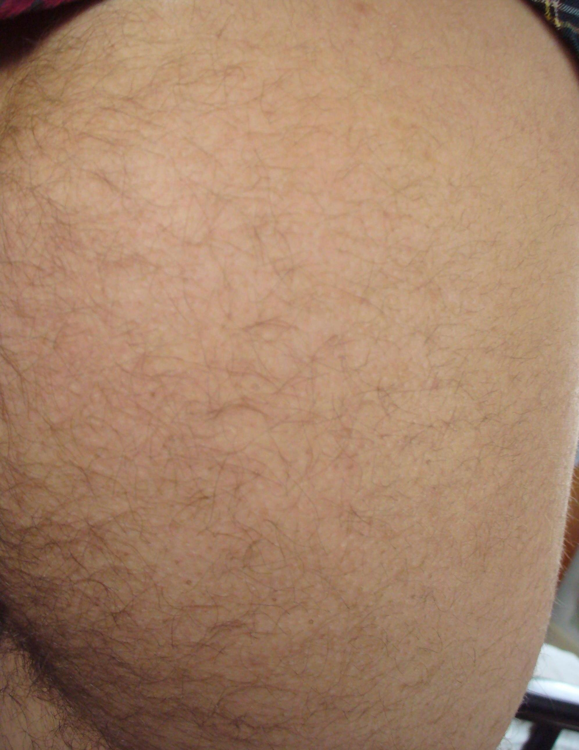 best of Hairy picture Butt