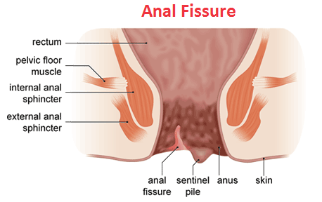 best of Fissure signs Anal
