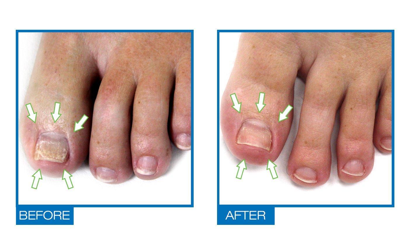 Nail fungus treatment nail penetration menthol