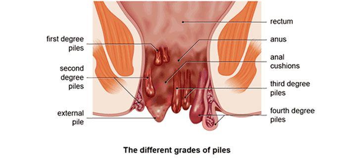 Internal fissures healing anal