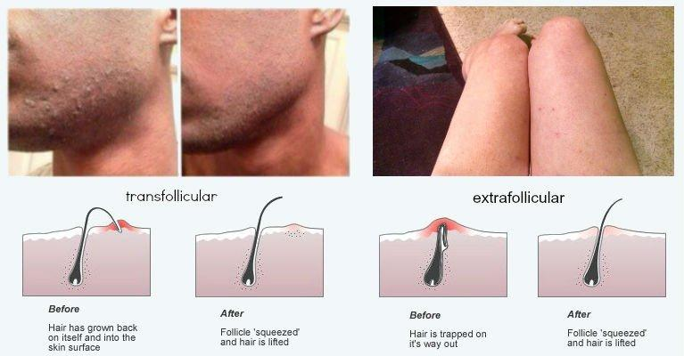 best of Line shaving bumps Bikini
