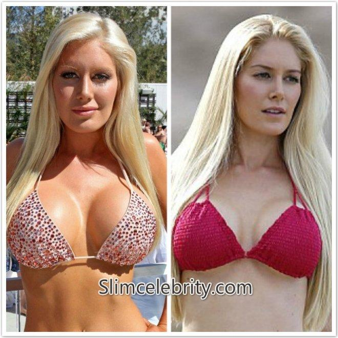 Young pics reduction breast