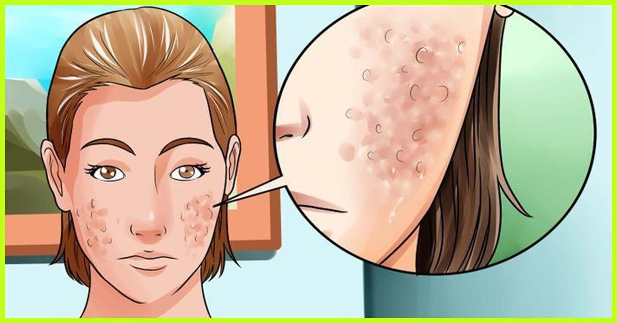 Big L. reccomend How To Dry Up Pimples Naturally Free Video 18+ 2018