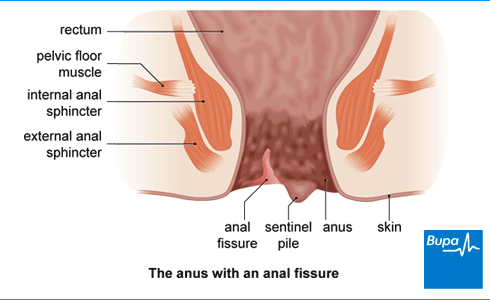 Anal fissure signs