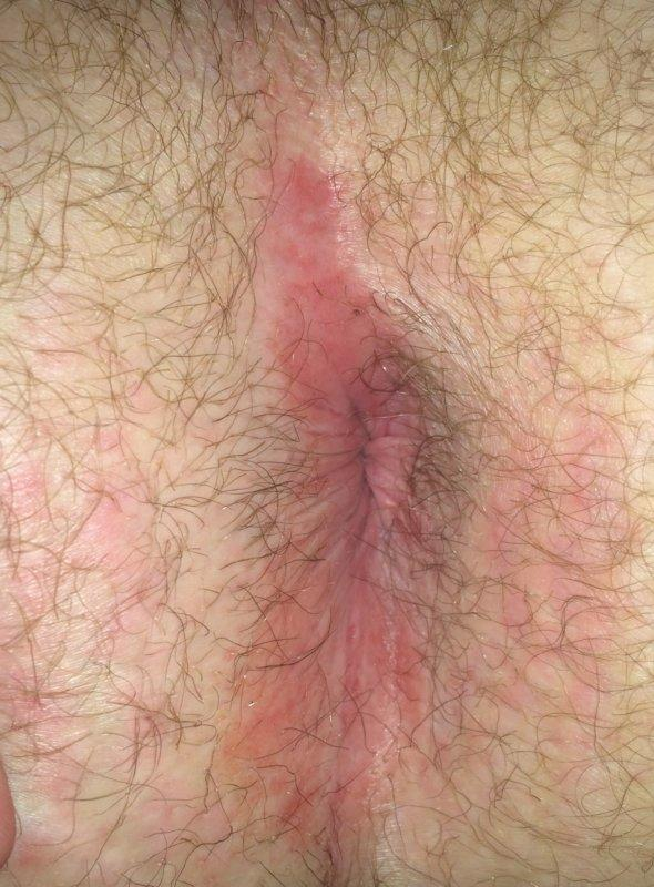 best of Anus Itchy rash