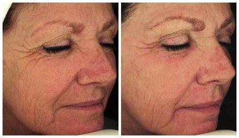 Treatments facial sunspots