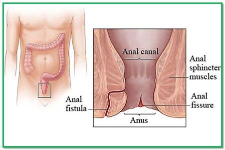 Troubleshoot reccomend Anus pain orgaism causes
