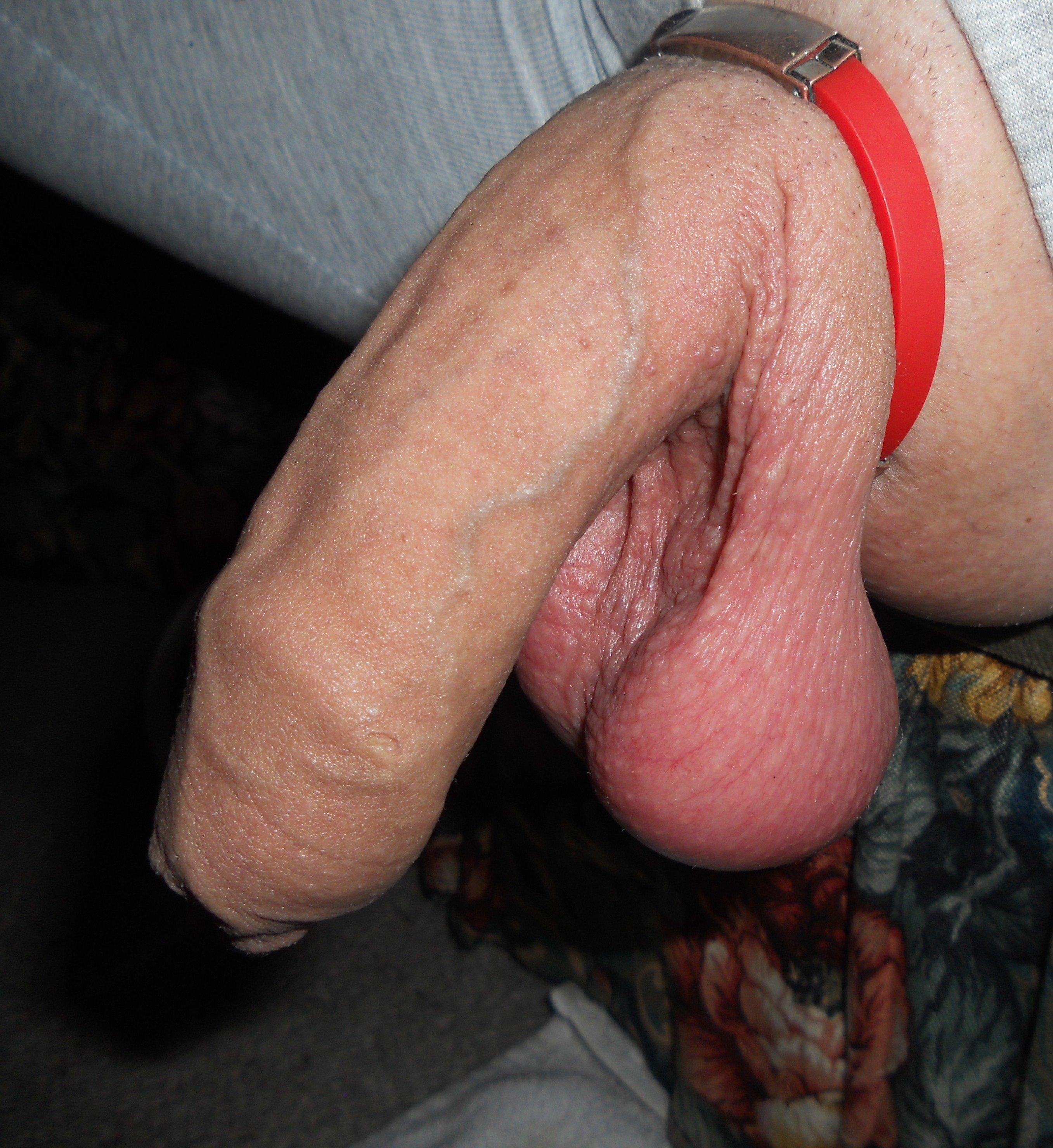Opening Of Penis