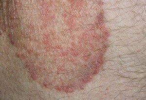 Opaline reccomend Itchy rash anus