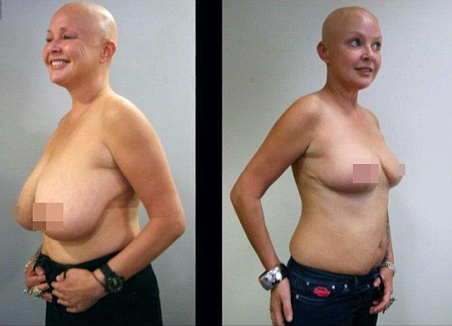 best of Boob reduction Natural